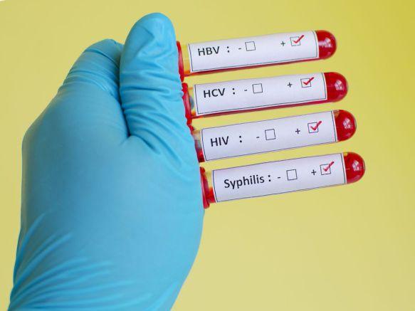 Trasmissione sifilide