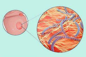 Sintomi della Sifilide